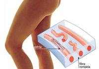 Onde aplicar sanguessugas pela perda de peso